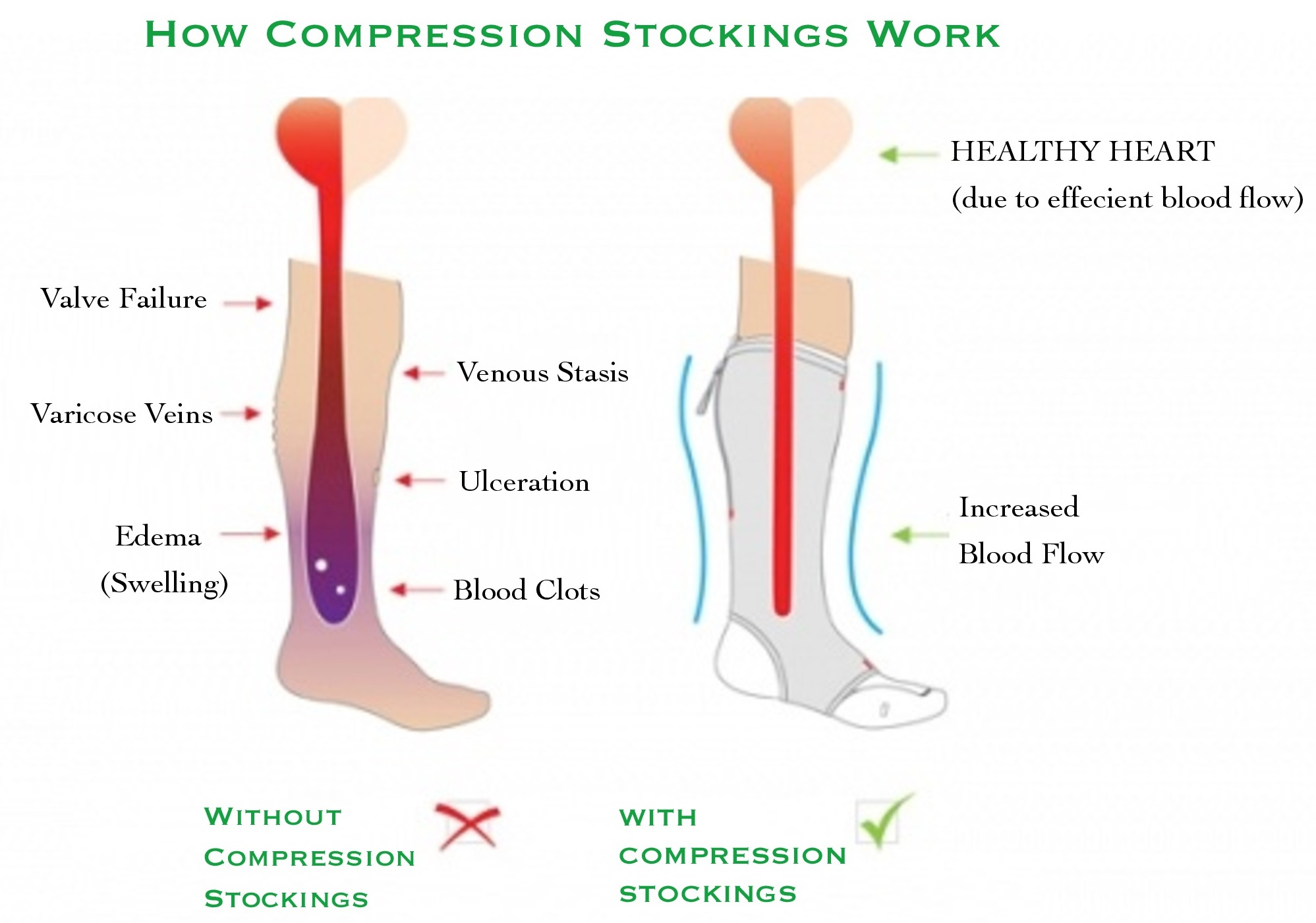 Compression Stockings - Brampton Foot Clinic