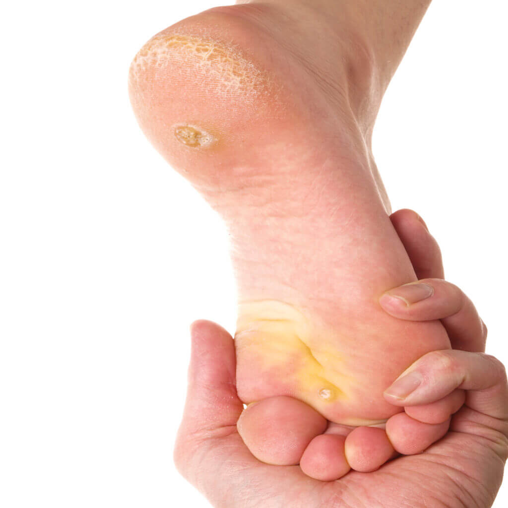 Corns and calluses on foot