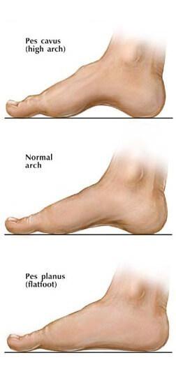 Flat feet Brampton