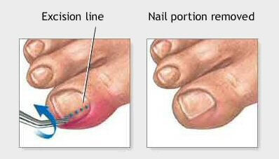 Nail and soft tissue surgery Brampton