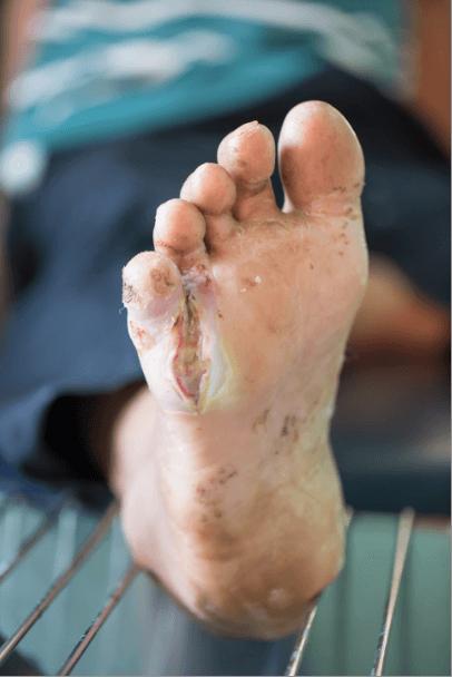 Diabetes and feet brampton